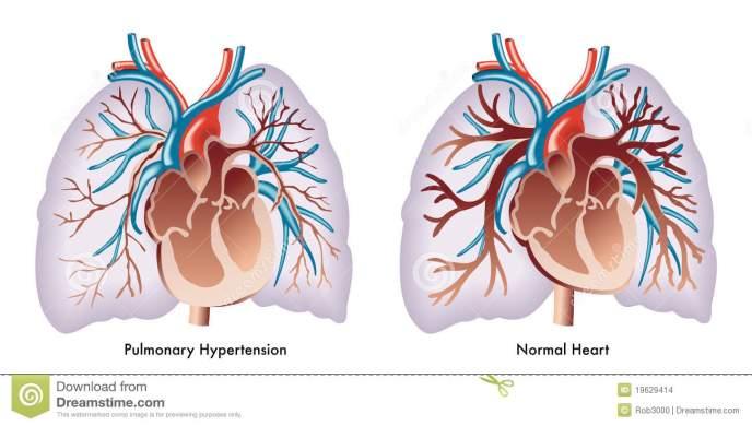 υπέρταση-πνευμονική-19629414